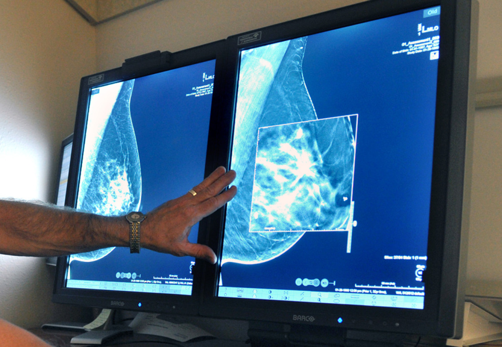 A radiologist compares mammogram images in Wichita Falls, Texas. New technology can detect much smaller cancers earlier.