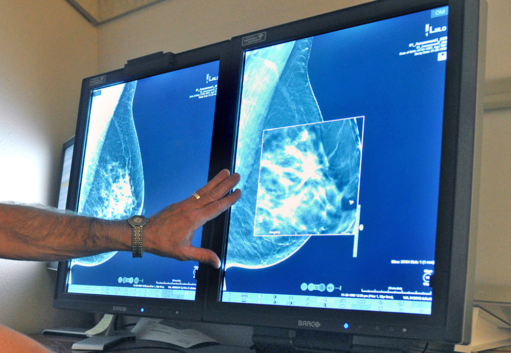 A radiologist compares an image from earlier, 2-D technology mammogram to the newer 3-D Digital Breast Tomosynthesis mammography. Torin Halsey/Times Record News via AP
