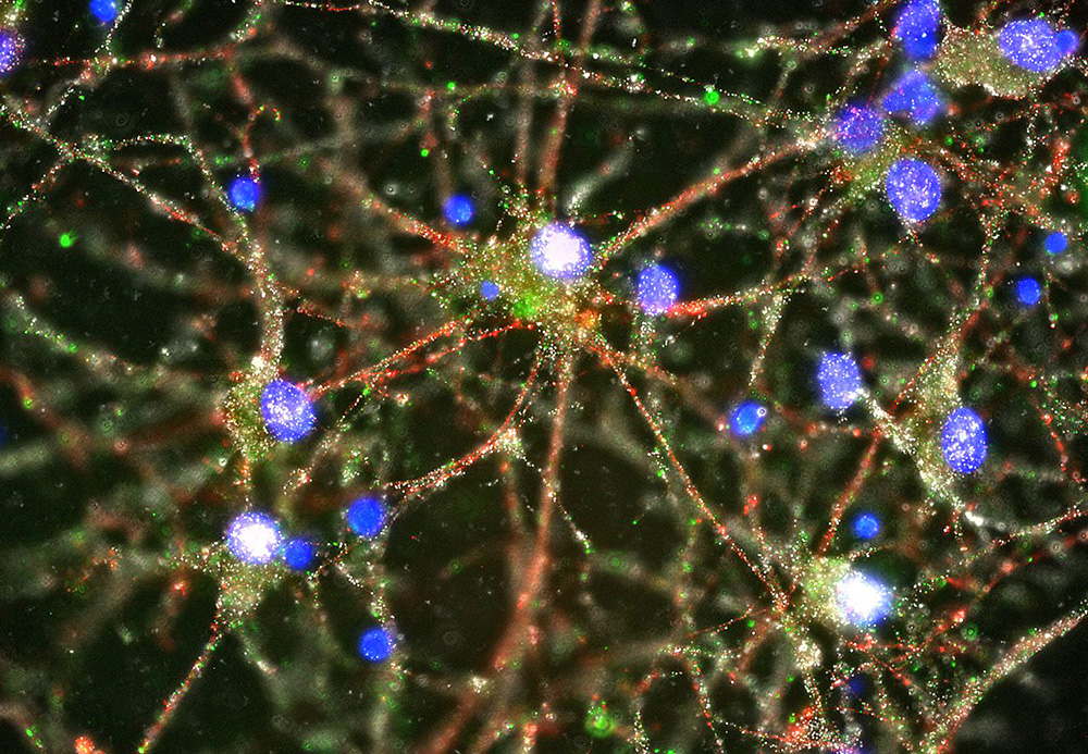 This image made with a fluorescent microscope shows C4 proteins (green), located at the synapses in a culture of human neurons. Scientists pursuing the biological roots of schizophrenia have zeroed in on a potential factor – a normal brain process that gets kicked into overdrive. The finding could someday lead to ways to treat the disease or even prevent it. Heather de Rivera/McCarroll Lab/Harvard via AP