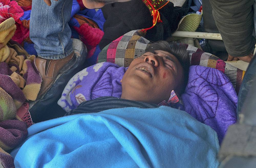 An Indian man grimaces in pain after he was injured in an earthquake in Imphal, capital of the northeastern state of Manipur, India, Monday. The Associated Press