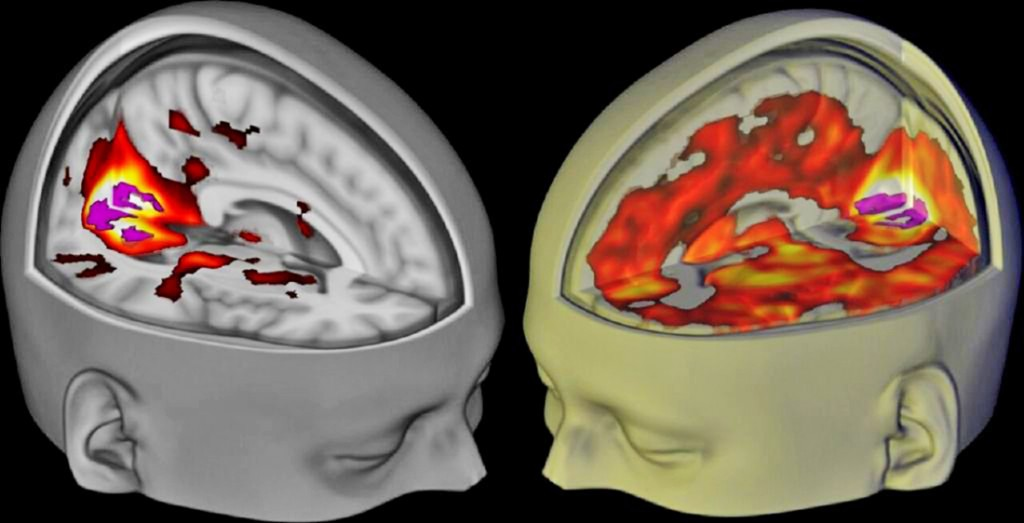 The brains of subjects lying awake with their eyes closed, under a placebo, left, and the drug LSD, right, are seen when being examined using functional MRI. Image provided by Imperial College London and The Beckley Foundation