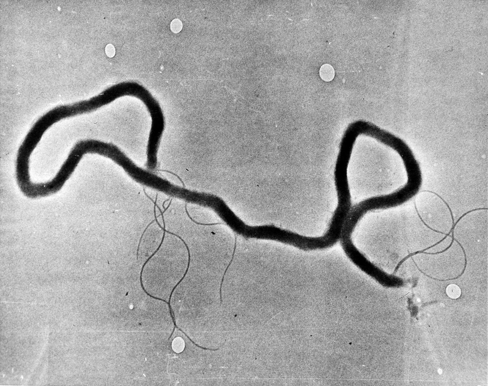 FILE - In this May 23, 1944 file photo, the organism treponema pallidum, which causes syphilis, is seen through an electron microscope. Las Vegas is experiencing a syphilis outbreak, as health officials warn of a national spike in cases that some are tying to increased testing, as well as the prevalence of anonymous sex through social media and a less consistent use of condoms. (AP Photo, File)