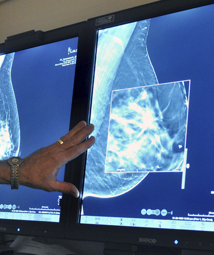 Mammograms can lead to overdiagnosis and overtreatment, a new study finds.