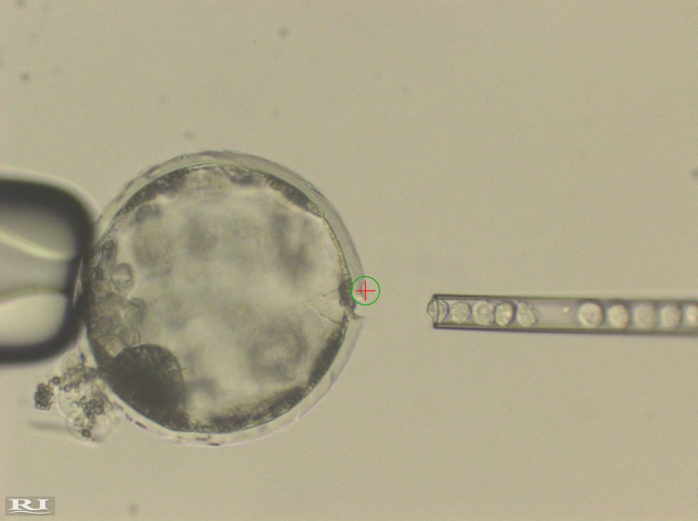 This undated photo shows the injection of human stem cells into a pig blastocyst. A laser beam, indicated by a green circle with a red cross inside, was used to perforate the outer membrane to allow easy access for the needle. The experiment was a very early step toward the possibility of growing human organs inside animals for transplantation.