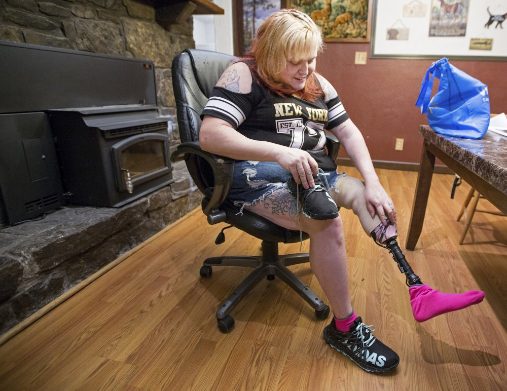 April Wood had two surgeries at Maine's Togus VA hospital related to an ankle injury. The pain persisted, and her leg was ultimately amputated. In 2013, Togus officials told her that the earlier procedures were performed poorly.