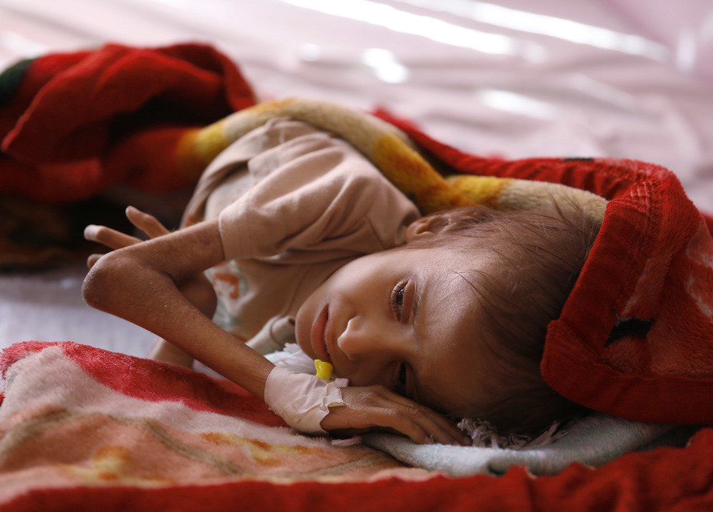 A malnourished child lies in a hospital in Sanaa, Yemen. Save the Children says 130 children die every day in Yemen from hunger and disease.