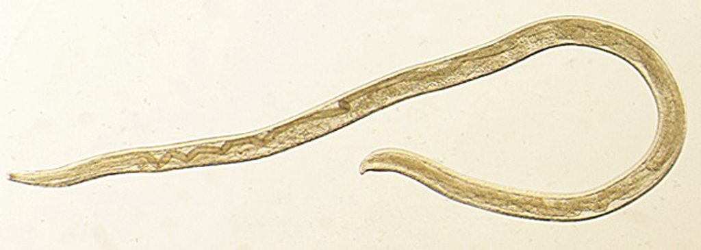 This undated photo provided by the Centers for Disease Control and Prevention (CDC) shows Thelazia gulosa, a type of eye worm seen in cattle in the northern United States and southern Canada, but never before in humans.