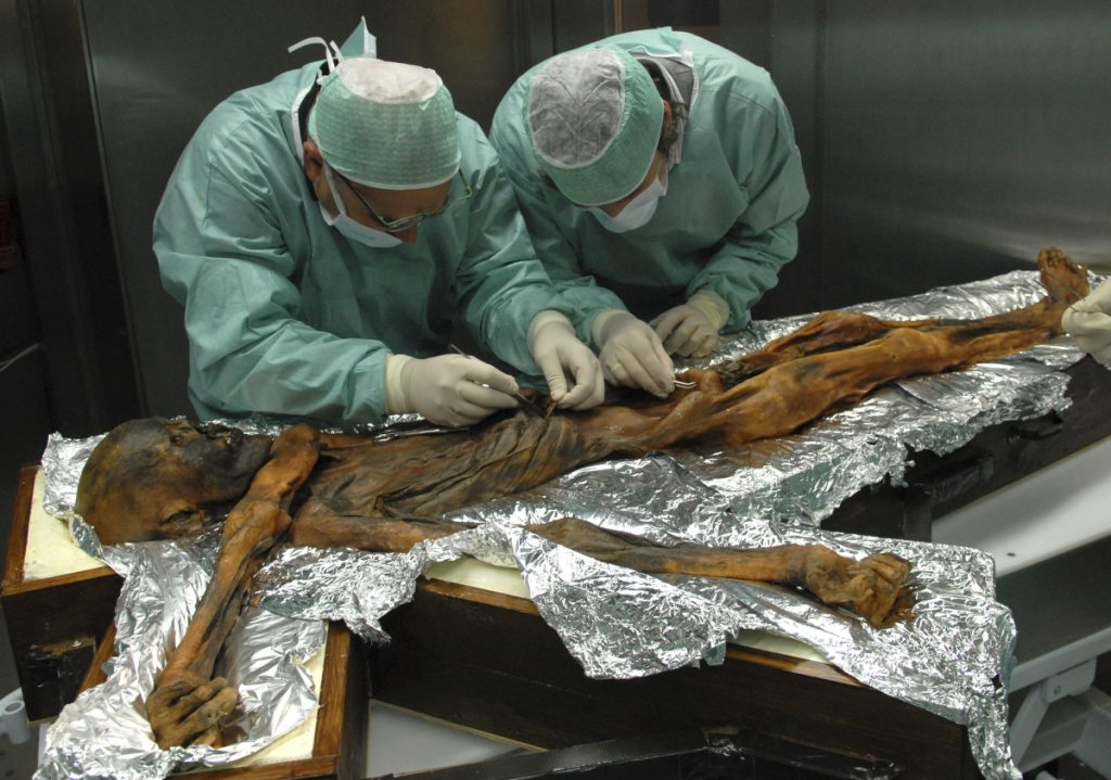 Researchers examine the body of a frozen hunter known as Oetzi the Iceman to sample his stomach contents in Bolzano, Italy in 2010.