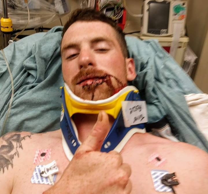 Cameron Hart is shown in his hospital bed after being hit in the face by a ricocheting bullet while he was playing disc golf in Turner.