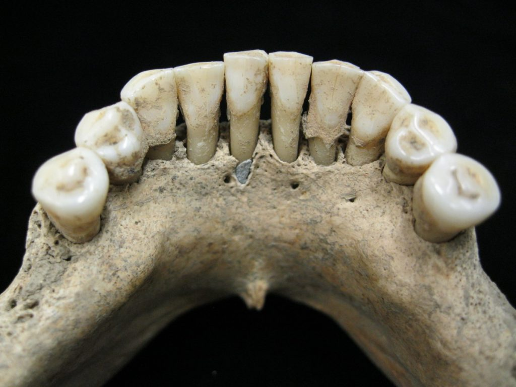 The dental calculus on the lower jaw where a medieval woman entrapped lapis lazuli pigment, seen below the center tooth. The semi-precious stone was highly prized at the time for its vivid color and was ground up and used as a pigment. From this discovery, scientists concluded the woman was an artist involved in creating illuminated manuscripts, a task usually associated with monks.