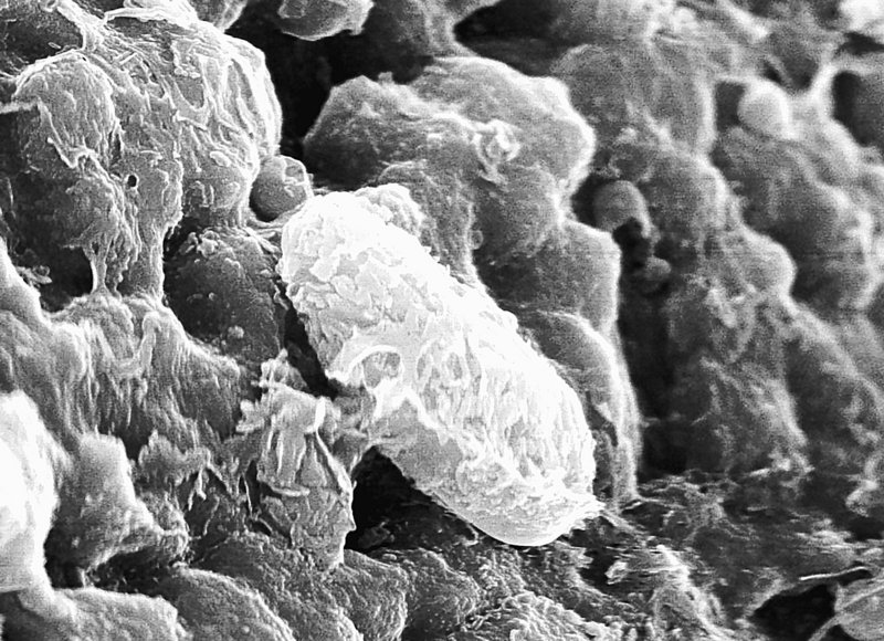 Microscopic fossils found on meteorites traced to Mars have been called proof that life has existed on that planet. Speaking at a NASA-sponsored conference in Texas, scientists presented data they say refutes some of the criticism they faced in 1996 when they proposed the idea of life on Martian meteors.