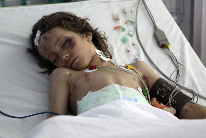 Nine-year-old Ruben van Assouw is seen Thursday in his bed at El Khadra Hospital in Libya. Ruben was the only survivor of a Libyan Afriqiyah Airways plane with 104 people on board that crashed Wednesday at the Tripoli airport.
