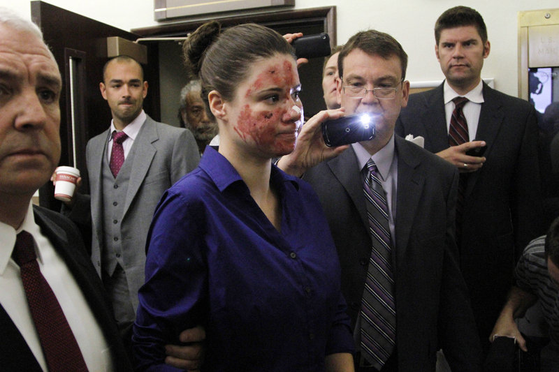 Bethany Storro, who claimed that a stranger threw acid in her face but later said she did it herself, leaves court Wednesday in Vancouver, Wash. She has been charged with theft.