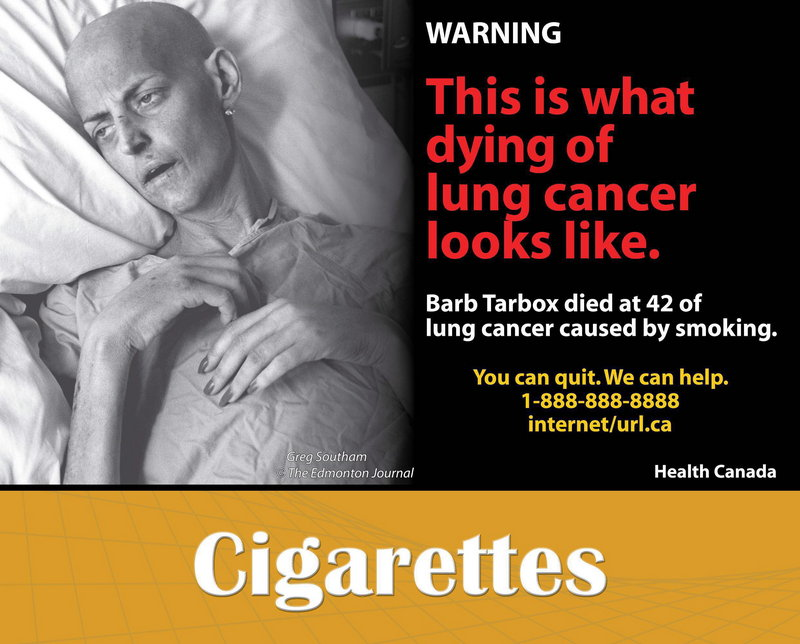 This is one of the explicit graphics that Canada uses for cigarette pack labels. Other countries have used such warnings for years, and various studies suggest they spur people to quit. Their effectiveness is up for debate, though, since the images are usually accompanied by other anti-smoking efforts.