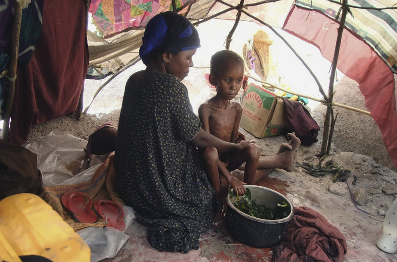 A malnourished child from southern Somalia is washed in a herbal solution by her mother in a makeshift shelter in Mogadishu, Somalia. Al-Shabab, a militant group in Somalia, has previously banned the World Food Program from its region and 14 WFP workers have been killed since 2008.