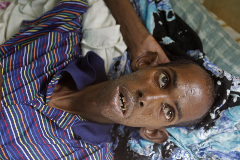 A malnourished refugee from Somalia lies in a field hospital of the International Rescue Committee in Dadaab, Kenya, on Wednesday. Dadaab, a camp designed for 90,000 people, now houses around 372,000 refugees.