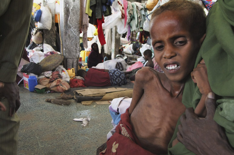 A malnourished child leans on his mother in a refugee camp in Mogadishu.