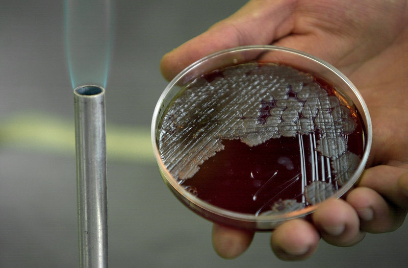 A sample of anthrax bacteria at the National School of Biological Sciences in Mexico City. Anthrax is a bioterrorist's likely choice because it is easy to produce.