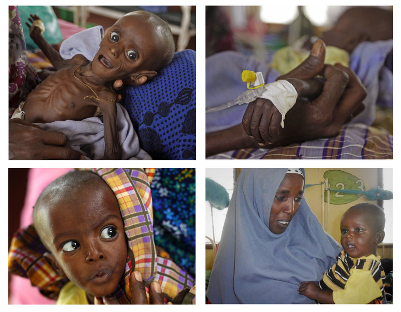 Minhaj Gedi Farah is shown at various dates of his recovery at the International Rescue Committee hospital in Dadaab, Kenya. At seven months, he weighed only 7.05 pounds. After weeks of feeding, he gained more than 10 pounds.