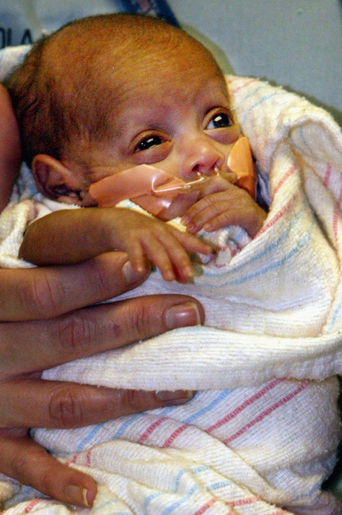 Rumaisa Rahman, seen Dec. 21, 2004, at Loyola University Medical Center, was born Sept. 19, 2004, weighing 9.2 ounces. Now a healthy first-grader, she is believed to be the smallest baby in the world ever to survive.
