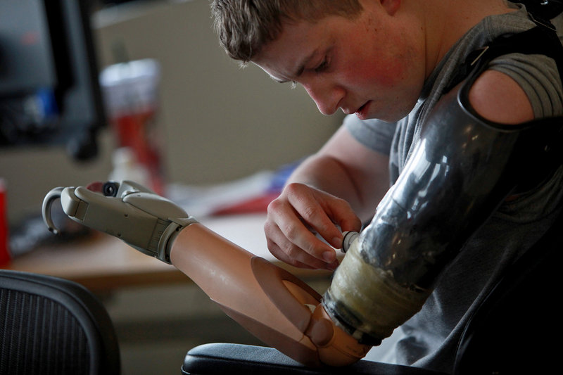 Army Pfc. Kevin Trimble, 19, adjusts his myoelectric upper limb prosthetic for occupational therapy at the Center for the Intrepid at Brooke Army Medical Center in San Antonio, Texas. At 19, Kevin has lost an arm and both legs above the knee from a bomb in Afghanistan.
