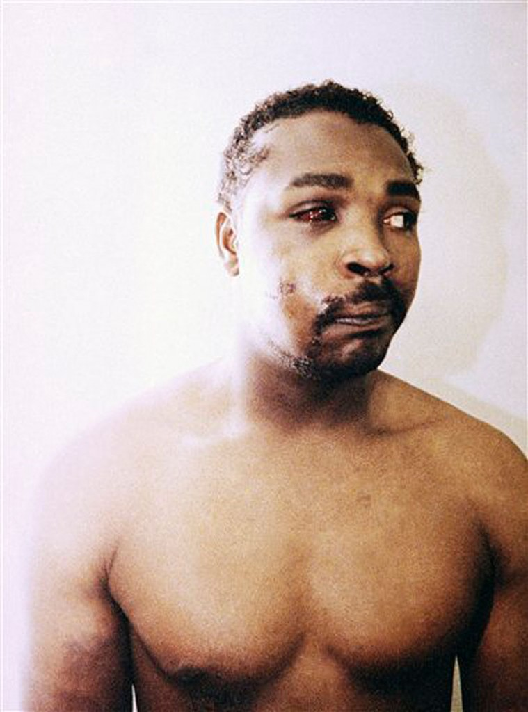 This file photo of Rodney King was taken three days after his videotaped beating in Los Angeles on March 6, 1991. King, the black motorist whose 1991 videotaped beating by Los Angeles police officers was the touchstone for one of the most destructive race riots in the nation's history, has died, his publicist said Sunday, June 17, 2012. He was 47. (AP Photo/Pool, File)