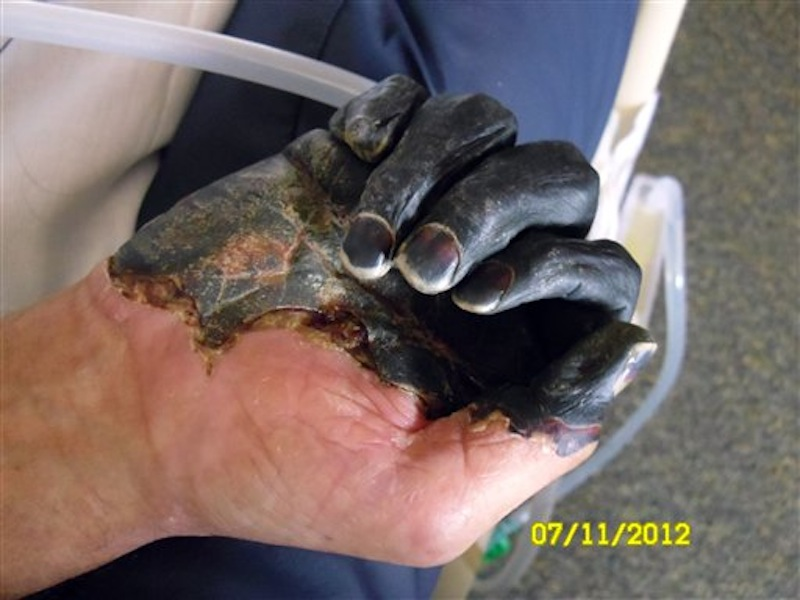 This photo supplied by the Gaylord family taken July 11, 2012, at a hospital in Bend, Ore., shows the blackened hand of Paul Gaylord as he recovers from the plague. Gaylord contracted the disease when he tried to pull a mouse out of the mouth of his cat, Charlie, because it was choking on the rodent. The disease, a version of the medieval scourge that wiped out at least a third of Europe, took away the 59-year-old welder's fingertips, his toes and his ability to make a living. He faces an arduous recovery surrounded by constant reminders of his misery, the infected cat died, and the trailer he's living in has a mouse problem. (AP Photo/The Gaylord Family)