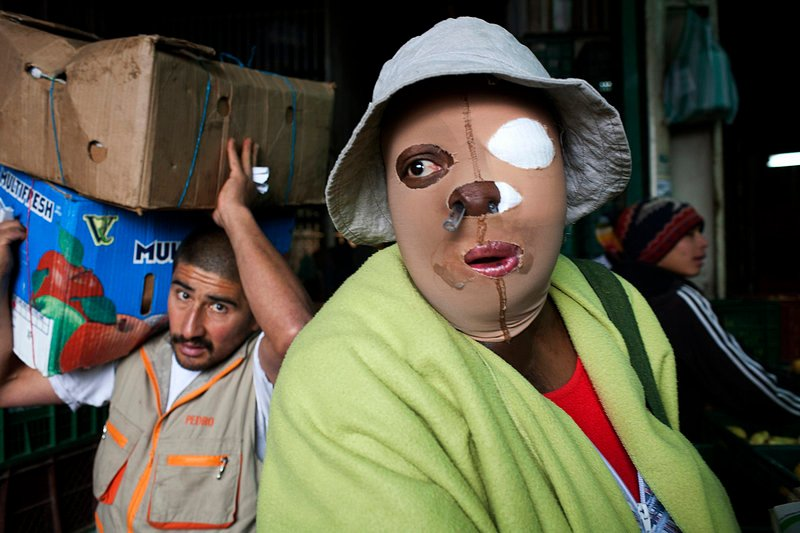 """When Consuelo Cordoba's boyfriend doused her with acid, the chemical burned off an ear, melted an eye, ate through her lower face and ruined her teeth. She now wears an elastic mask, breathes through a straw-like tube from her nose and looks """"like a monster,"""" as she put it."""