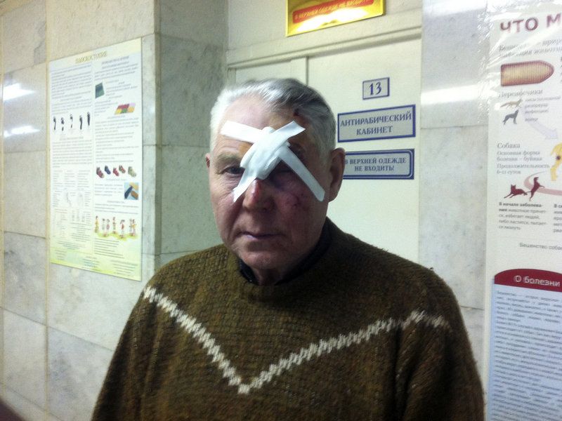 A man identifying himself only as Viktor has his face bandaged at a hospital in Chelyabinsk, Russia, where he sought treatment of injuries sustained after a meteorite exploded over the Ural Mountains on Friday, creating a shock wave that blew out windows and caused other damage. No one was killed.
