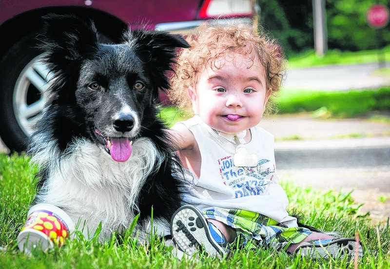 Kaiba Gionfriddo sits next to his family's dog, Bandit, outside his Youngstown, Ohio home Tuesday. Gionfriddo had a groundbreaking airway surgery in 2012.