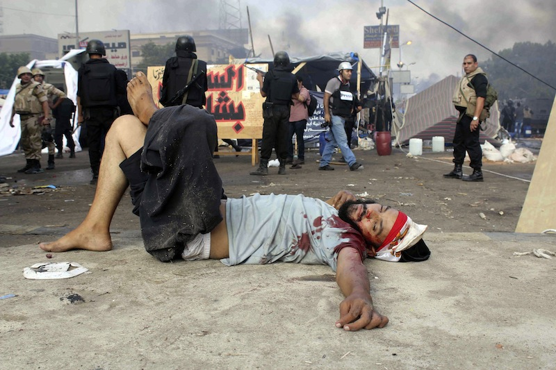A wounded protester lies on the ground as Egyptian security forces clear the smaller of the two sit-ins by supporters of ousted Islamist President Mohammed Morsi, near the Cairo University campus in Giza, Cairo, Egypt, Wednesday, Aug. 14, 2013. Egyptian security forces, backed by armored cars and bulldozers, moved on Wednesday to clear two sit-in camps by supporters of the country's ousted President Mohammed Morsi, showering protesters with tear gas as the sound of gunfire rang out at both sites. (AP Photo/Imad Abdul Rahman)