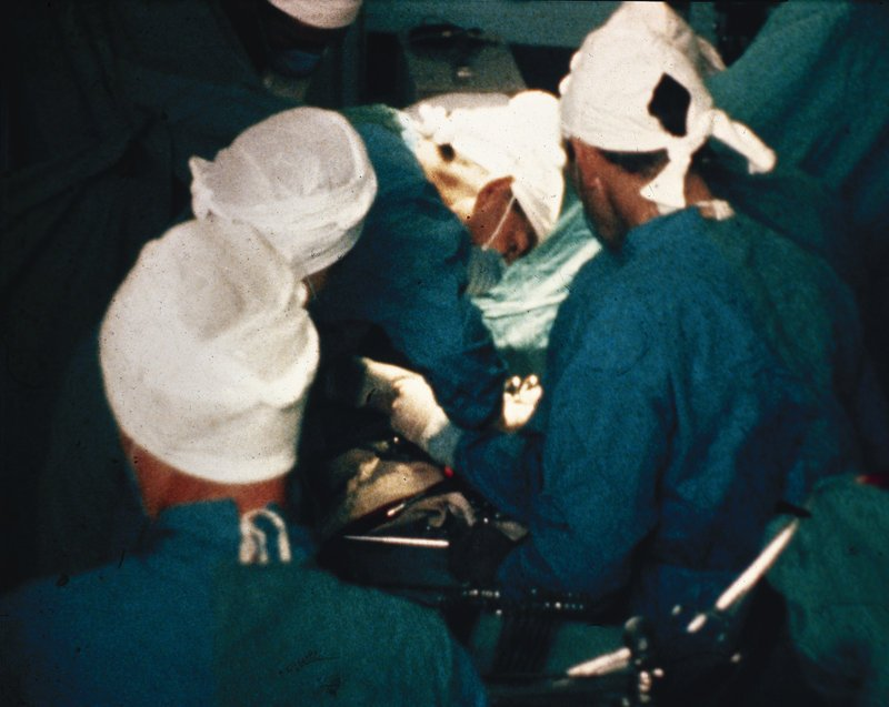 An undated photo shows pioneering cardiac surgeon Dr. Christiaan Barnard, second from right, performing heart surgery. There are 4,964 people waiting for an organ donation in Region 1, which includes Maine.