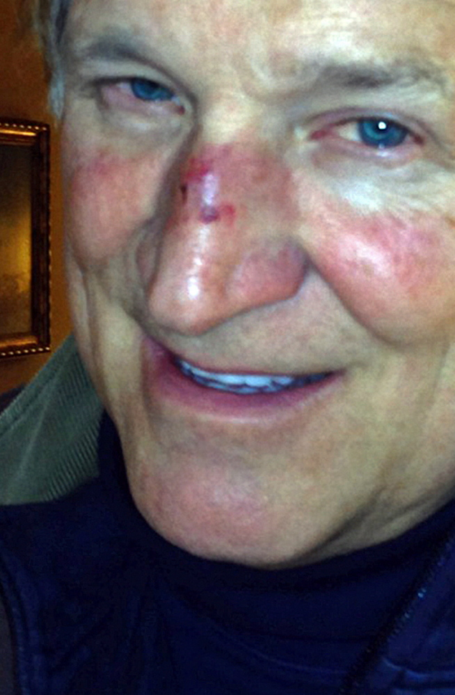 A cellphone photo shows John Yates in Ogunquit on Sunday after his fall due to passing out from carbon monoxide poisoning.