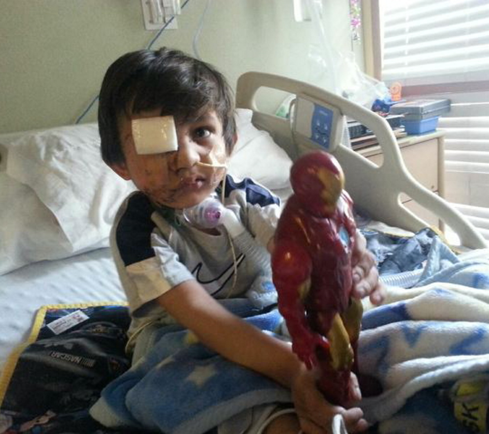 Four-year-old Kevin Vicente plays in his Phoenix, Ariz., hospital bed. He faces months, if not years, of reconstructive surgery after being mauled by a dog.