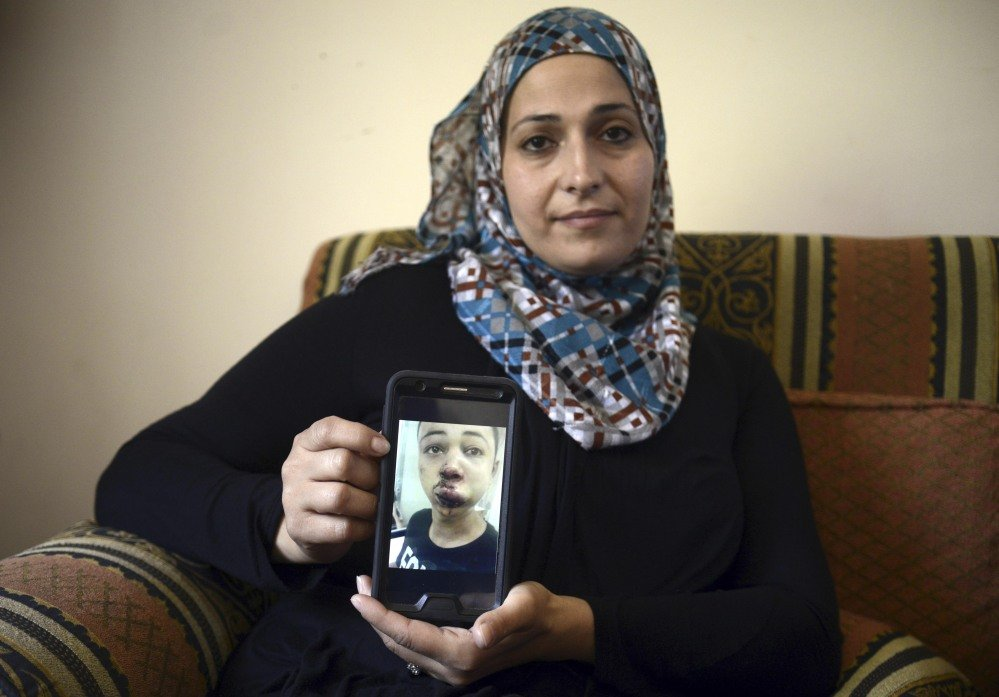 Suha Abu Khieder, mother of 15-year-old Tariq Abu Khieder, a U.S. citizen who goes to school in Tampa, Fla., shows a tablet with a photo of Tariq taken in a hospital after he was beaten and arrested by Israeli police during clashes sparked by the killing of his cousin Mohammad Abu Khieder in Jerusalem on Saturday. An Israeli police spokeswoman said Tariq had resisted arrest and attacked police officers. Tariq's father said he witnessed his son's arrest and insisted the boy was not involved in the violence.