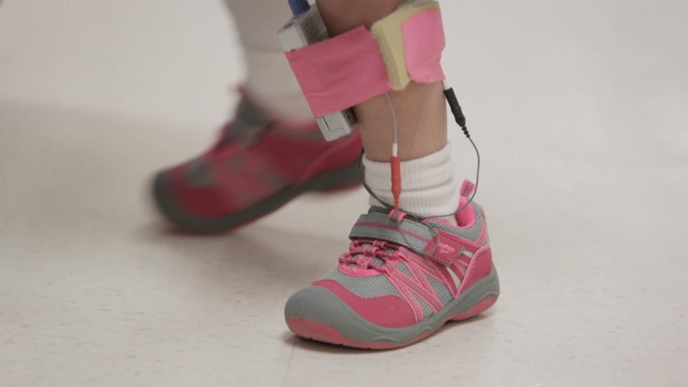 Zoey Houston wears sensors that stimulate nerves in her leg as she learns to walk again at New England Rehabilitation Hospital of Portland.