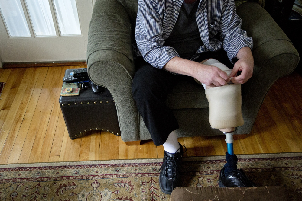 "Tony Reilly of South Portland tucks back the layers of socks he wears with his prosthetic leg. He will return to the stage this week with ""The Coma Monologues,"" which he wrote while lying in a hospital bed after a Dec. 23 car accident that killed his wife, Susan."