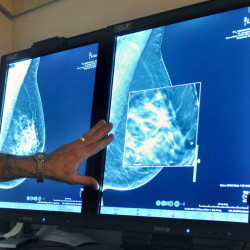 "According to researchers, chances of dying from ""ductal carcinoma in situ,"" a very early form of breast cancer, are small, but the disease is riskier for young women and blacks."