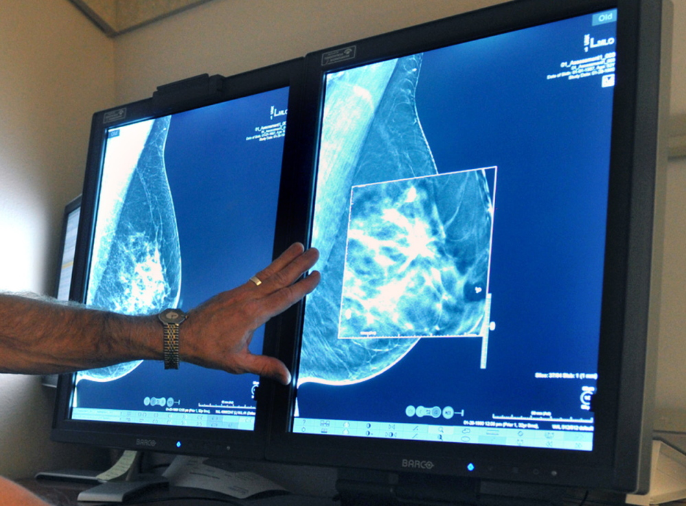"""According to researchers, chances of dying from """"ductal carcinoma in situ,"""" a very early form of breast cancer, are small, but the disease is riskier for young women and blacks."""