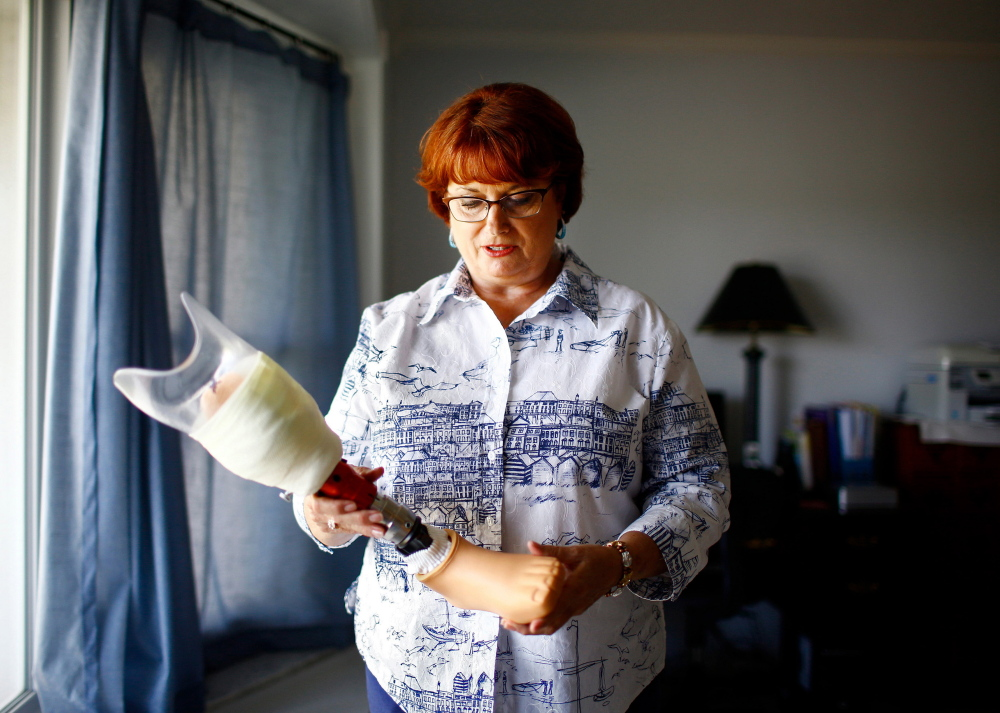 """Retired Army Sgt. Brenda Reed is waiting for a woman's prosthetic foot. """"It's been 2  years of tripping over feet that were too large,"""" she said. """"Women served their country, too. We shouldn't have to fight this hard."""""""