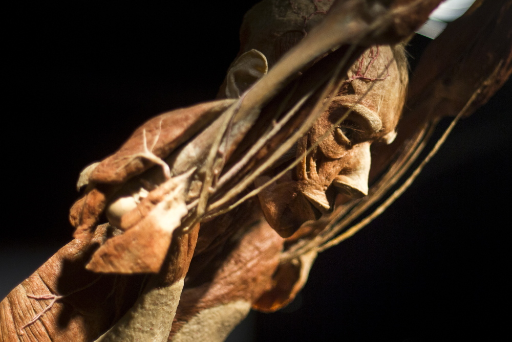"The ""Body Worlds"" exhibit uses a ""plastination"" procedure to reveal the insides of preserved bodies. A reader finds it surprising that more people are not outraged by it."