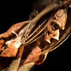 "The ""Body Worlds"" exhibit uses a plastination procedure to reveal the insides of preserved bodies."