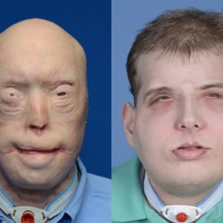 """Patrick Hardison's face was """"one huge scar"""" before a transplant gave him a new look and optimism. He is still in physical therapy but hopes to return to his Mississippi home for Thanksgiving."""