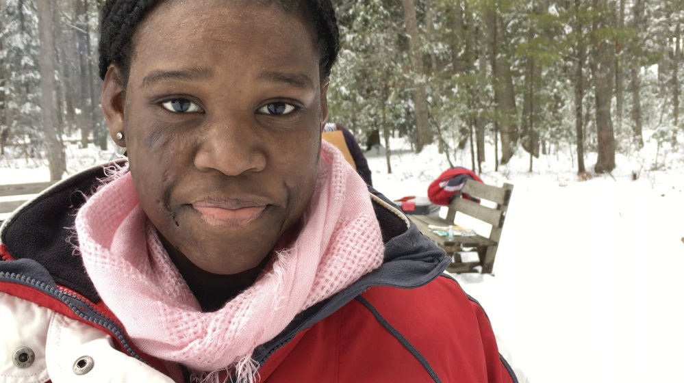 Frannie Santil, 13, of New York City, who suffered life-threatening burns when she was 6, describes the annual Fire and Ice Burn Survivors Winter Camp as her second home. Susan Kimball photo