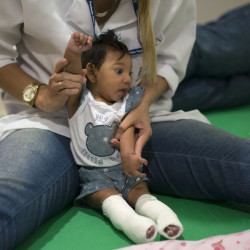 A therapist works with a microcephaly patient at a treatment center in Recife, Brazil, on Thursday. Brazilian authorities say they have detected a spike in the cases of small heads in newborns, but a link between Zika virus and microcephaly is as yet unproven.