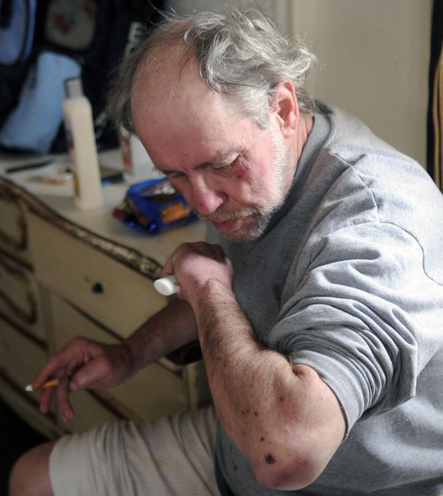Al Sugden said on Tuesday that bedbugs caused welts on his arm in his unit at 382 Water St. in Augusta.