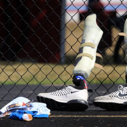 In this Monday, Aug. 1, 2016, photo, the prosthetic legs of paralympian runner A.J. Digby lean against a fence as he practices at the Eastwood High School track in Pemberville, Ohio. Digby, who was born with a congenital disorder and no fibula bones, had both feet amputated at 10-months-old. He will compete in the 2016 Paralympics in Rio de Janeiro. (Cameron Hart/The Blade via AP)