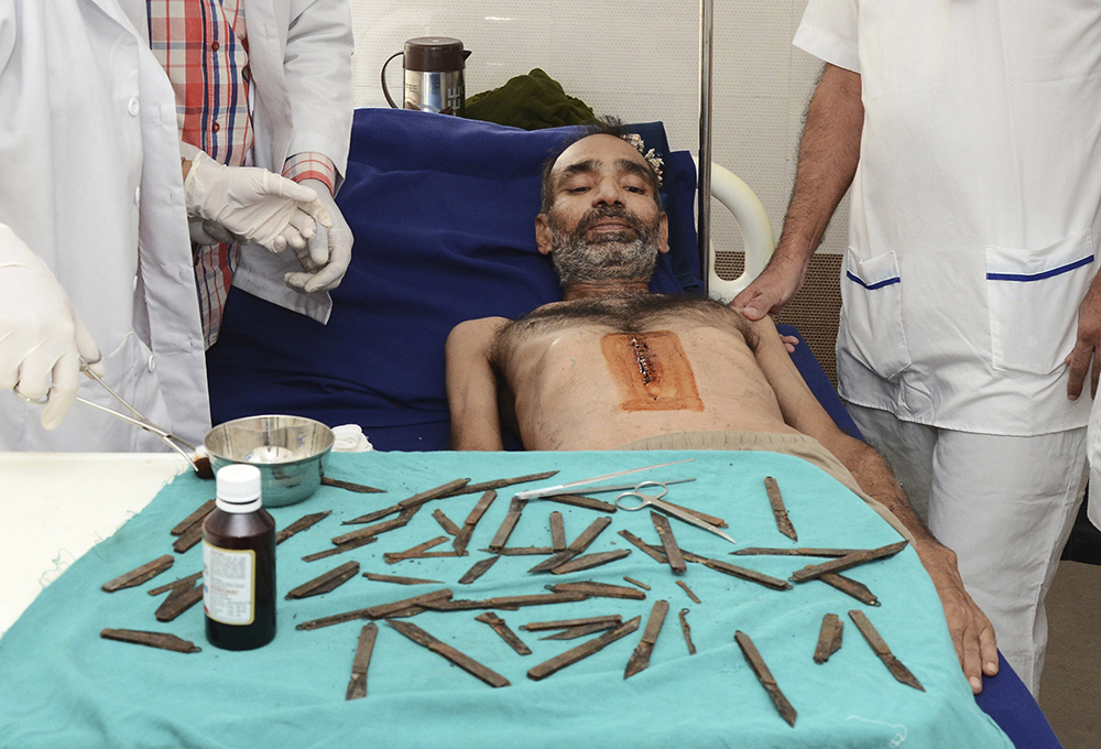 Police constable Surjeet Singh lies next to a table displaying the 40 knifes removed from his stomach as he recuperates in a hospital in Amritsar, India, Tuesday. Prabhjot Gill/Associated Press