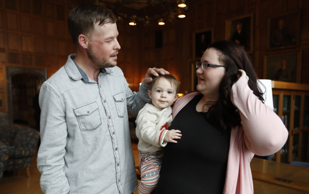 Lilly Ross, right, holds her 17-month-old son Leonard as she talks with face transplant recipient Andy Sandness, left, after their first meeting at the Mayo Clinic.