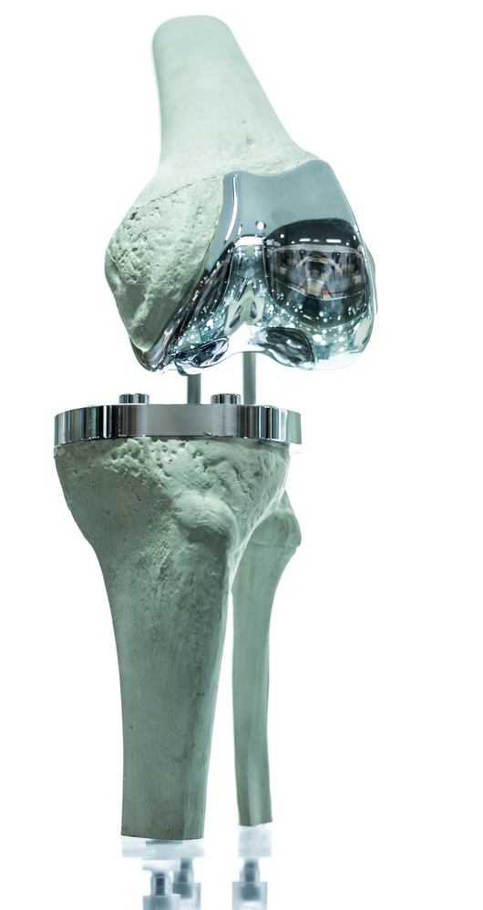 A knee prothesis is among the medical devices that will be taxed now following a two-year hiatus.